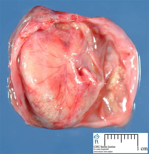 tumor with teeth and hair picture 1