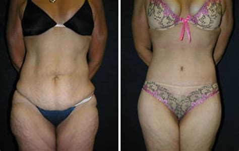non surgical weight loss florida picture 7