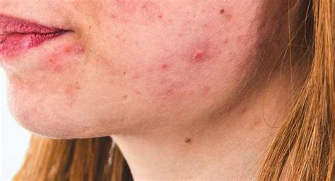 acne from vasectomy picture 1