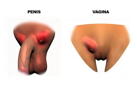 genital herpes and yeast infection picture 6