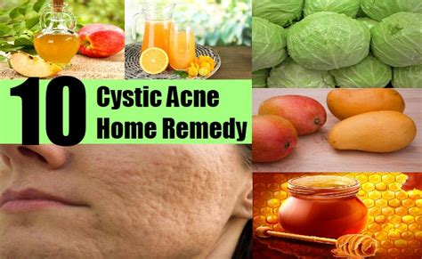 acne home remedy picture 6
