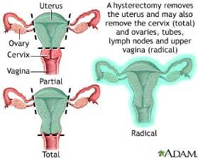 hysterectomy and wrinkles picture 2