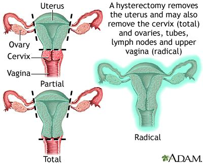 hsterectomy aging women looks picture 3