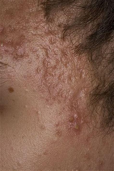 return thyromine picture 5