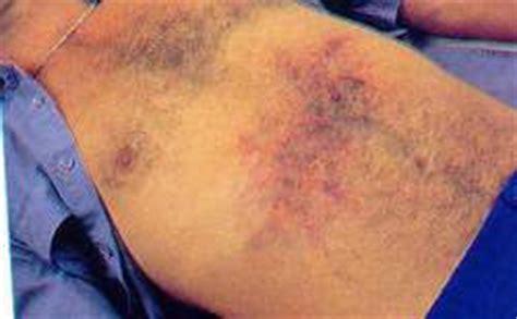 trangkaso symptoms picture 6