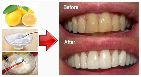 does baking soda whiten teeth picture 3
