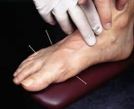 acupuncture pain relief picture 19