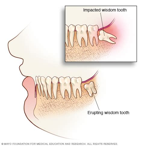 ache after wisdom tooth extraction picture 5