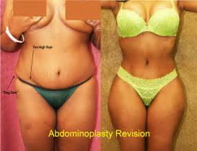 african american women with breast augmentation surgery picture 7