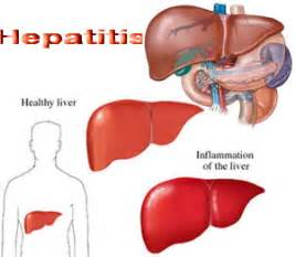 symptoms of inflamed liver picture 15