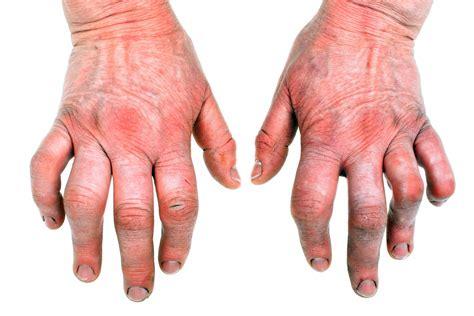 arthritis cod liver oil picture 1