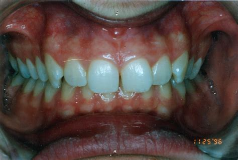 correcting h from overbite picture 1