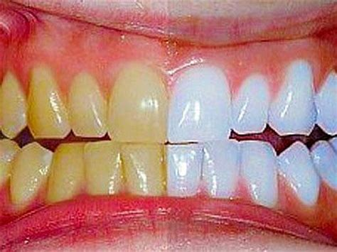 alberta teeth whitening picture 14