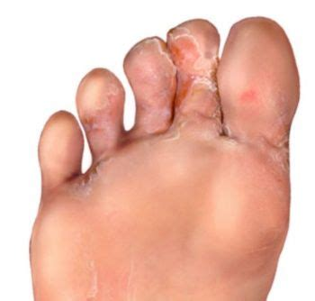 natural treatment for athlete fungus toe nail infections picture 6