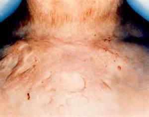 aluminum sulfate shrink penis picture 6