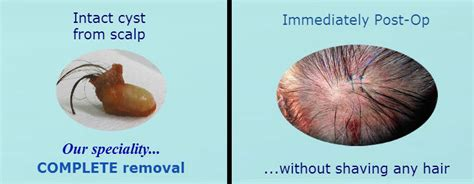 ayurvedic treatment for scalp cyst picture 7