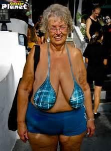 obese cellulite oma picture 5