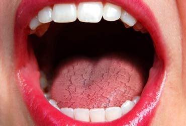 dry mouth teeth hurting metal taste picture 10