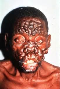 philippines skin rash picture 7
