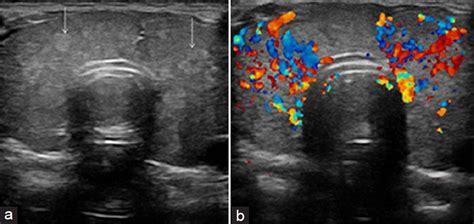 doppler ultrasound of thyroid nodules shows blue, red, picture 6