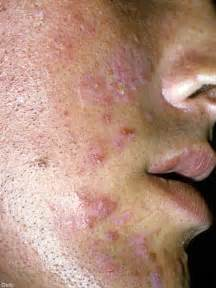 std & acne picture 11