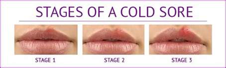 beginging stages of oral herpes pictures picture 2