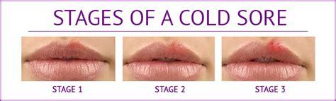 cold core on lip picture 10