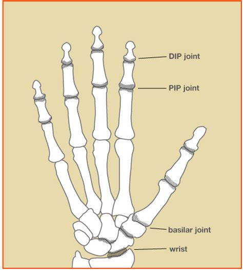 pain in joints of fingers picture 2