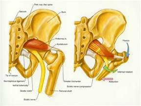 leg pain muscle twitching picture 2