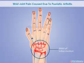 joint and wrist pain picture 18