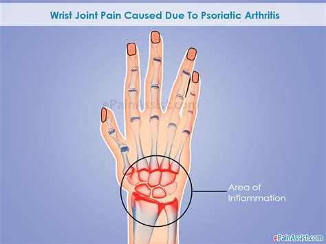 causes of body joint pain inflammation picture 9