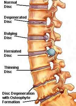 strengthen spinal facet joints picture 5
