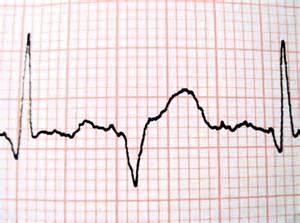 abnormal ekg dizziness high blood pressure picture 7