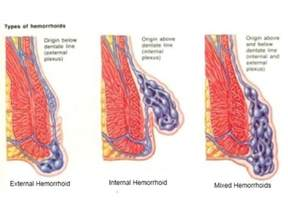 painless external hemorrhoids picture 1