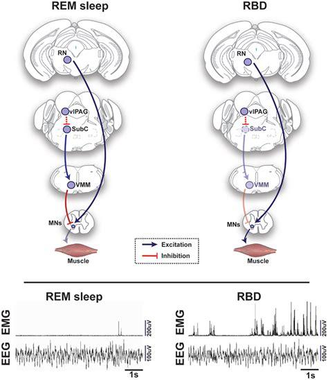 causes of disturbance of rem sleep picture 3
