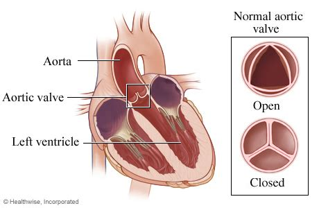 erectile dysfunction and aortic heart valve picture 4