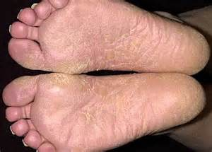 foot skin infections picture 15