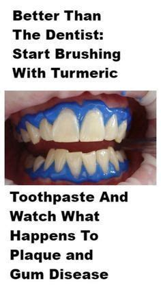treatment for healthy gums and teeth picture 8