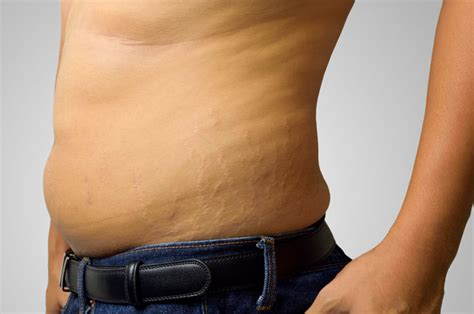 could long term antibiotics cause stretch marks picture 2