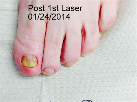 fungus laser treatment va picture 5