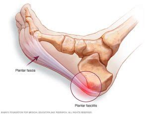 fistula pain relief picture 7