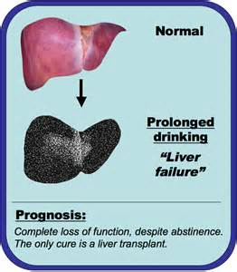 liver failure due to alcohol picture 1