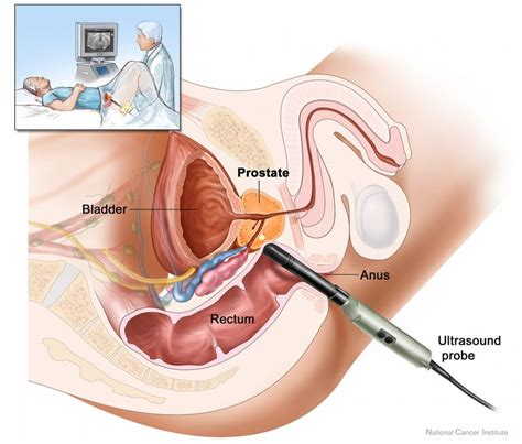 asian men prostate gland care customs picture 13