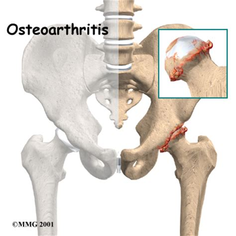 osteoarthritis hip joint picture 5