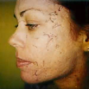 msm cream heals rolling acne scars picture 15