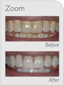 los angeles whiten teeth picture 6