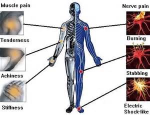 acupuncture pain relief picture 11