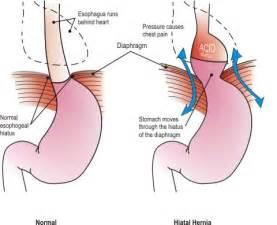 gastrointestinal stomach diet plan picture 11