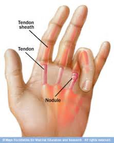 best solution for joint pain picture 5