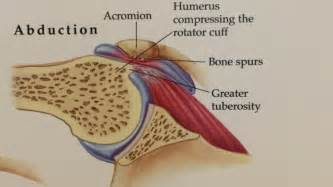 joint impingement syndrome shoulder diagnosis treatment picture 6